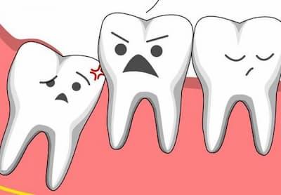 Răng ngu là gì
